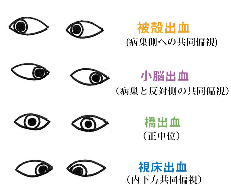 脳内出血の病変部位と眼球の動き(共同偏視)の覚え方。